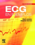 ecg en ejemplos-martin d. jenkins-9788480869430