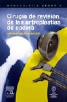 Premioinnovacionsanitaria.es Cirugia De Revision De Las Artroplastias De Cadera Image