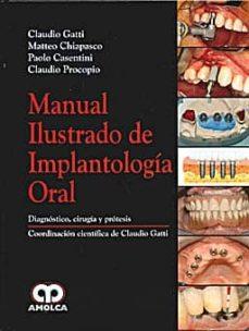 Foro de descarga de libros Kindle MANUAL ILUSTRADO DE IMPLANTOLOGIA ORAL de MATTEO CHIAPASCO, PAOLO CASENTINI (Spanish Edition)