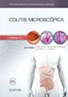 Descargar kindle books en pdf COLITIS MICROSCÓPICA (Spanish Edition)