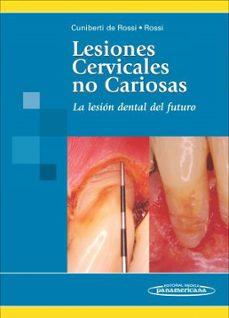 Descargas de libros para ipads LESIONES CERVICALES NO CARIOSAS: LA LESION DENTAL DEL FUTURO