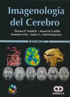 Ebooks audiolibros descarga gratuita IMAGENOLOGIA DEL CEREBRO (2 VOLS. + DVD)