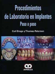 Libro gratis para descargar en pdf. PROCEDIMIENTOS DE LABORATORIO EN IMPLANTES: PASO A PASO 9789587550290 (Literatura española)
